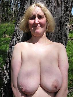 british ex girlfriend bald picture